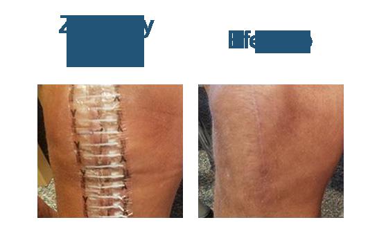 Zipline3.png